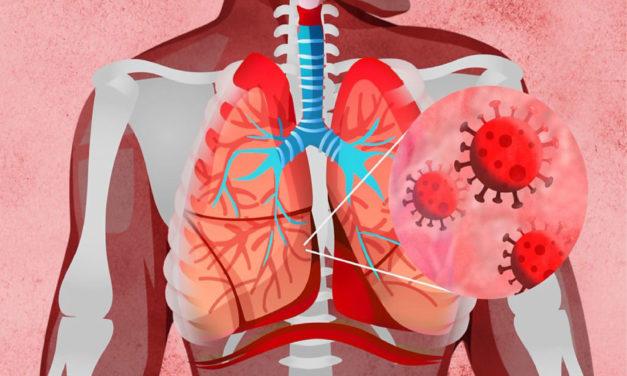Coronavirus: ¿Qué hace la COVID 19 al cuerpo?