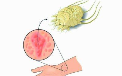 Enfermedades de la piel (La acarosis o rasca-rasca)